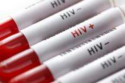 ویروس ایدز نابود شد
