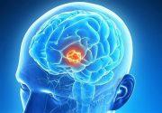 ایران جزو ۳ کشور نخست ضایعات مغزی و نخاعی در تصادفات است